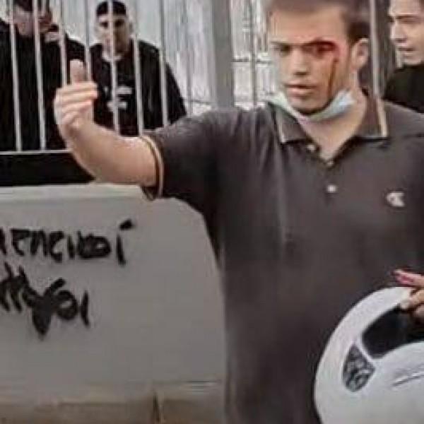 Görögország: Molotov-koktélokkal támadtak az antifákra a nacionalista fiatalok